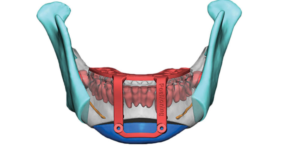 The VSP service is used to digitally plan surgeries for improved success rates. Image via 3D Systems.