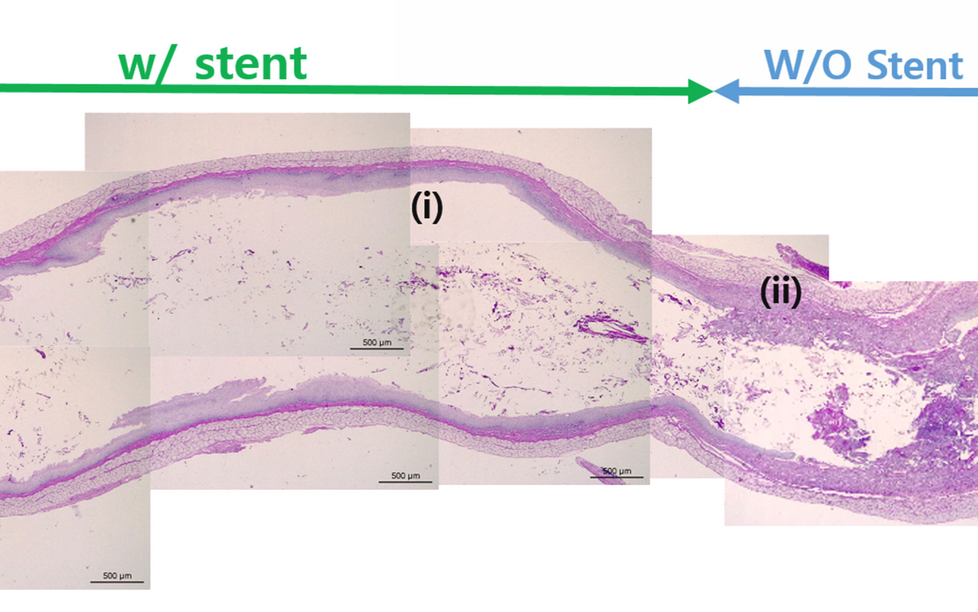 The 3D printed stents demonstrated the ability to encourage cell proliferation during lab rat evaluations. Image via the Biomaterials journal.