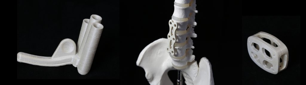 First concept models for 3D printed medical devices from LCP materials. Photo via Nematx.