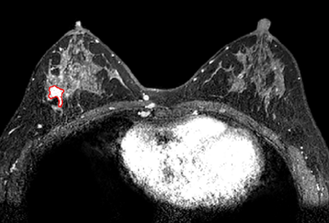 Using MRI imaging, the researchers were able to accurately identify the location of tumors within their test patients. Image via the Scientific Reports journal.