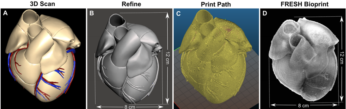 Image shows four scans, the first image shows the heart based on an MRI scan and the last image is the full-size FRESH print using alginate. Photo via Carnegie Mellon University.