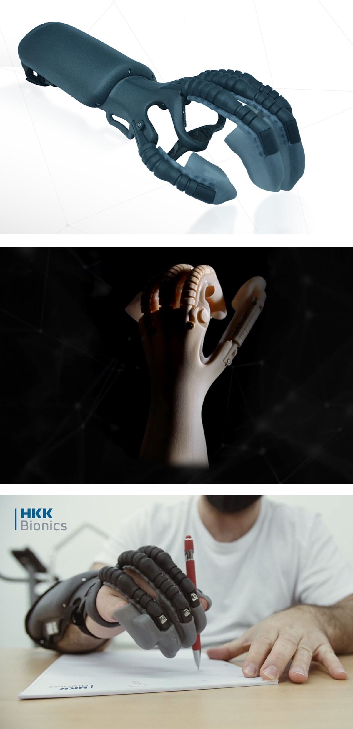 "HKK Bionics' Exomotion Hand One bionic hand orthosis, which can be best described as a ""motorized glove"". Image via Formnext Connect."