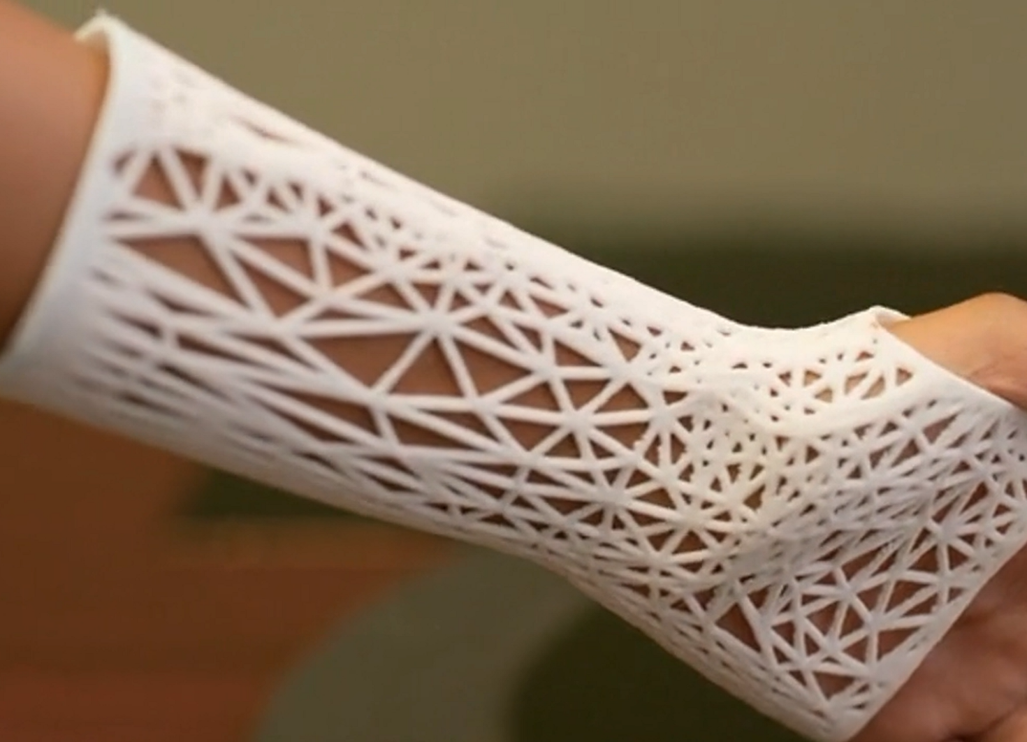 PrinterPrezz uses its 3D printing technologies to fabricate casts, prosthetics and implants for clinical customers. Photo via PrinterPrezz.