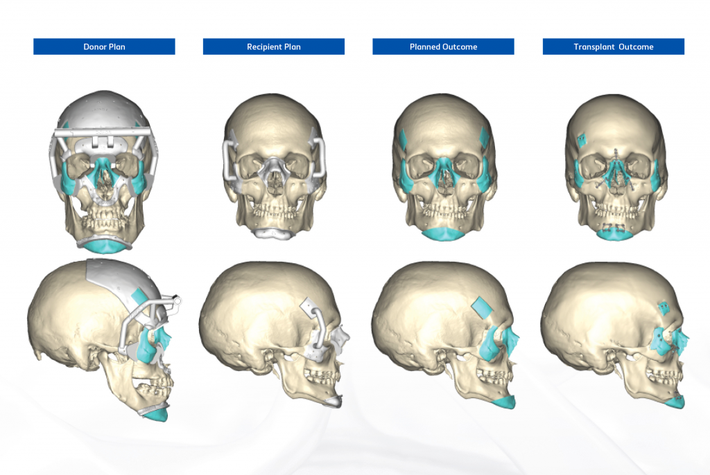 A screen capture of Materialise's 3D medical software showing the NYU Langone Health team's surgical plan.