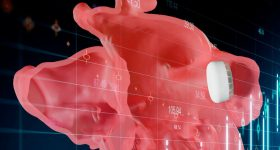 A LAAO device is used to regulate blood flow to the left atrium. Image via Materialise.