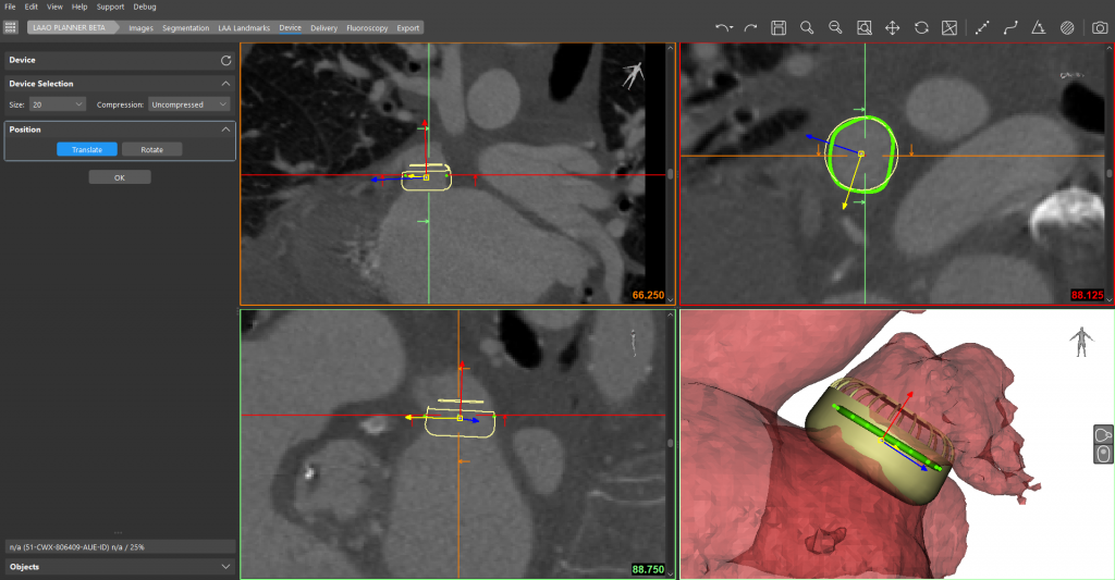 Performing a virtual LAAO device implantation in Mimics Enlight. Image via Materialise.