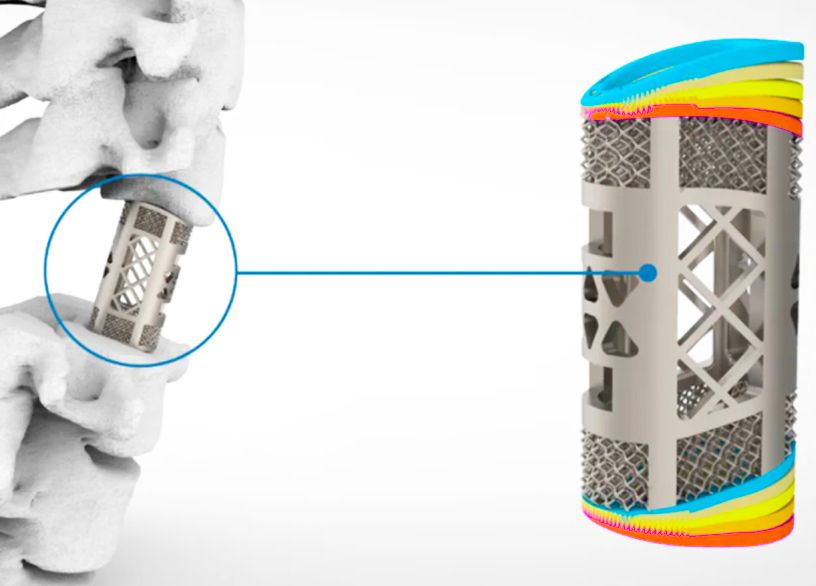 An animated image of Huaxiang's spinal implant, showing its level of temperature tolerances.