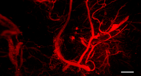 Blood vessel infiltration in the 3D bioprinted constructs. Image via Lund University.