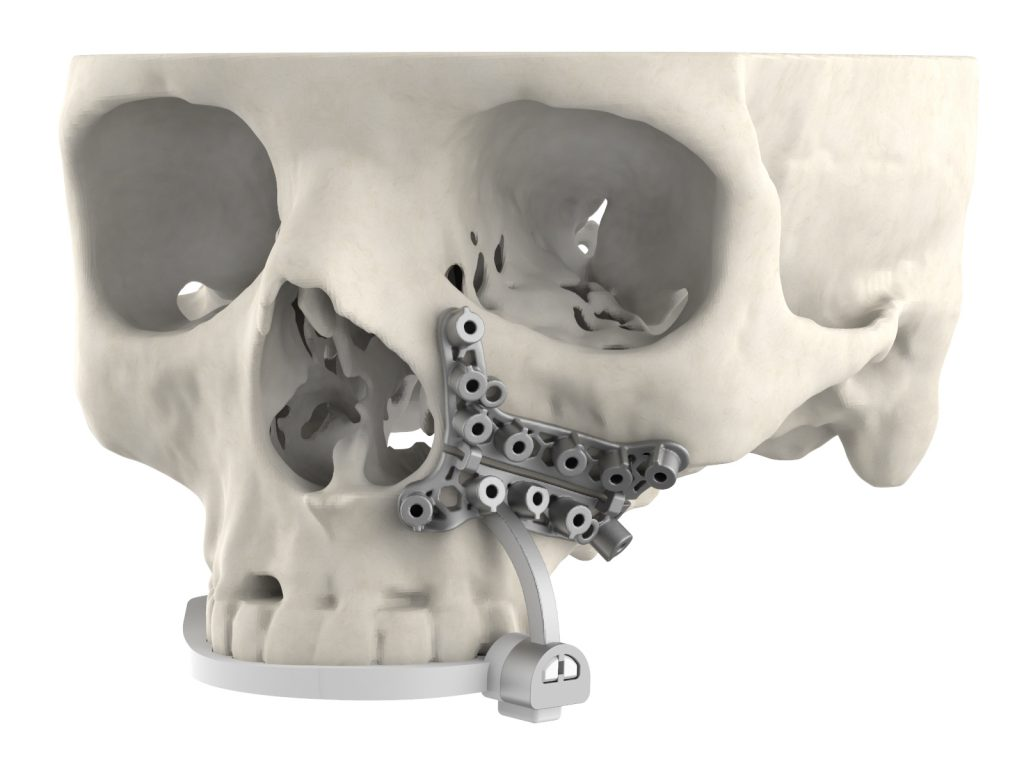 An image of 3D Systems' new surgical guide attached to a skull
