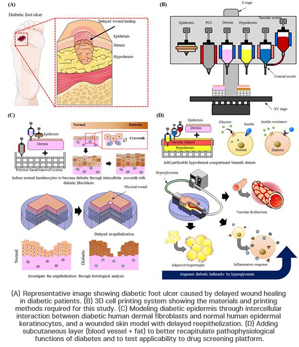 How 3D cell printing was used during the study to fabricate the artificial diseased skin model. Image via POSTECH.