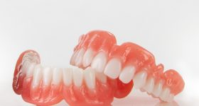 Dentures 3D printed with Desktop Health's proprietary Flexcera resins. Photo via Desktop Metal.