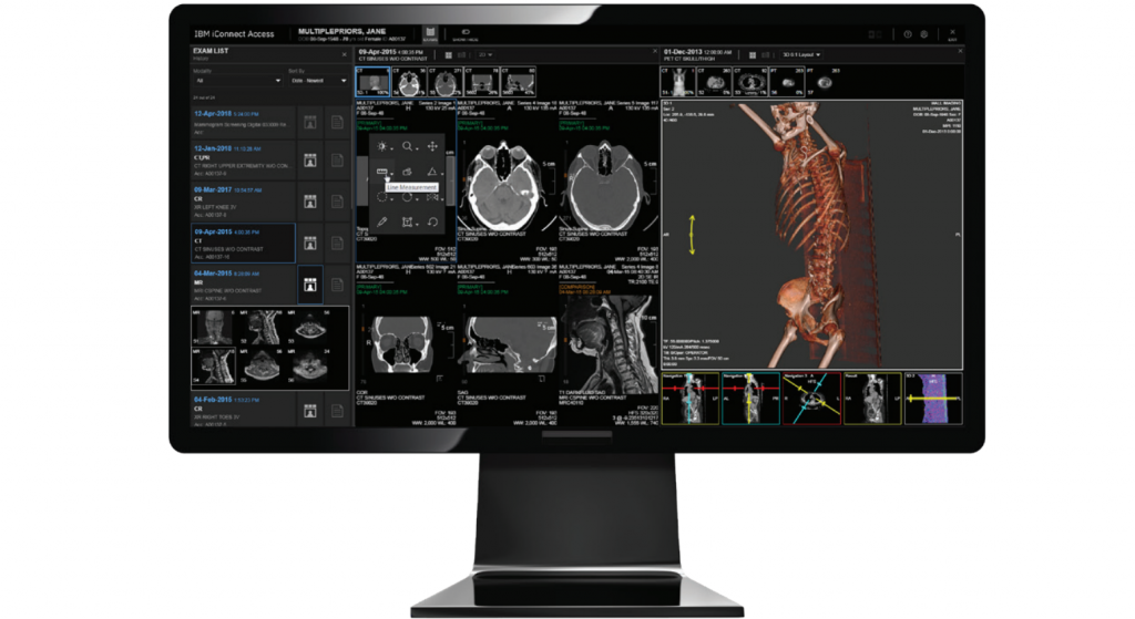 The iConnect Access 3D model viewer. Photo via IBM.