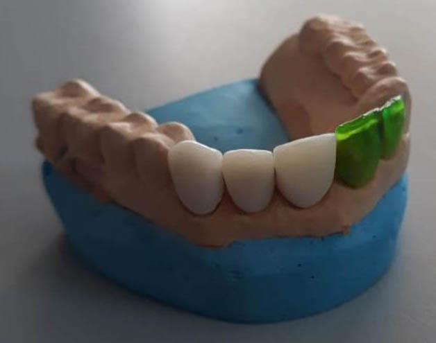 A Dentafab 3D printed temporary tooth.