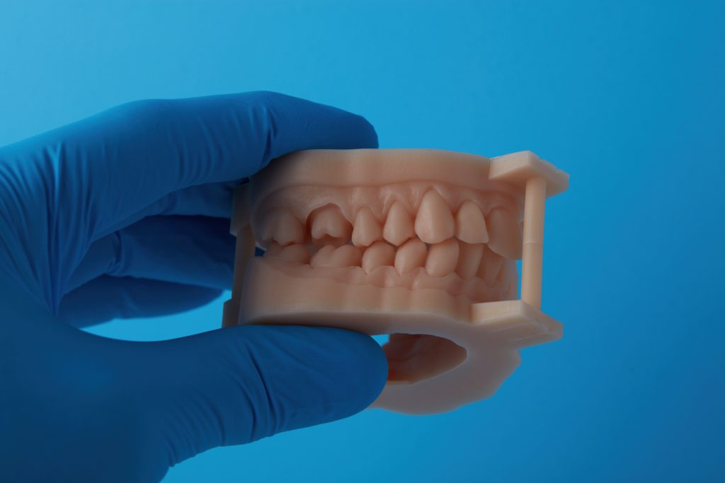 A fully assembled dental model 3D printed in Model Resin. Photo via Formlabs.