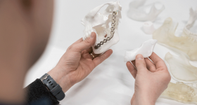 A 3D printed jaw model and bioresorbable implant.