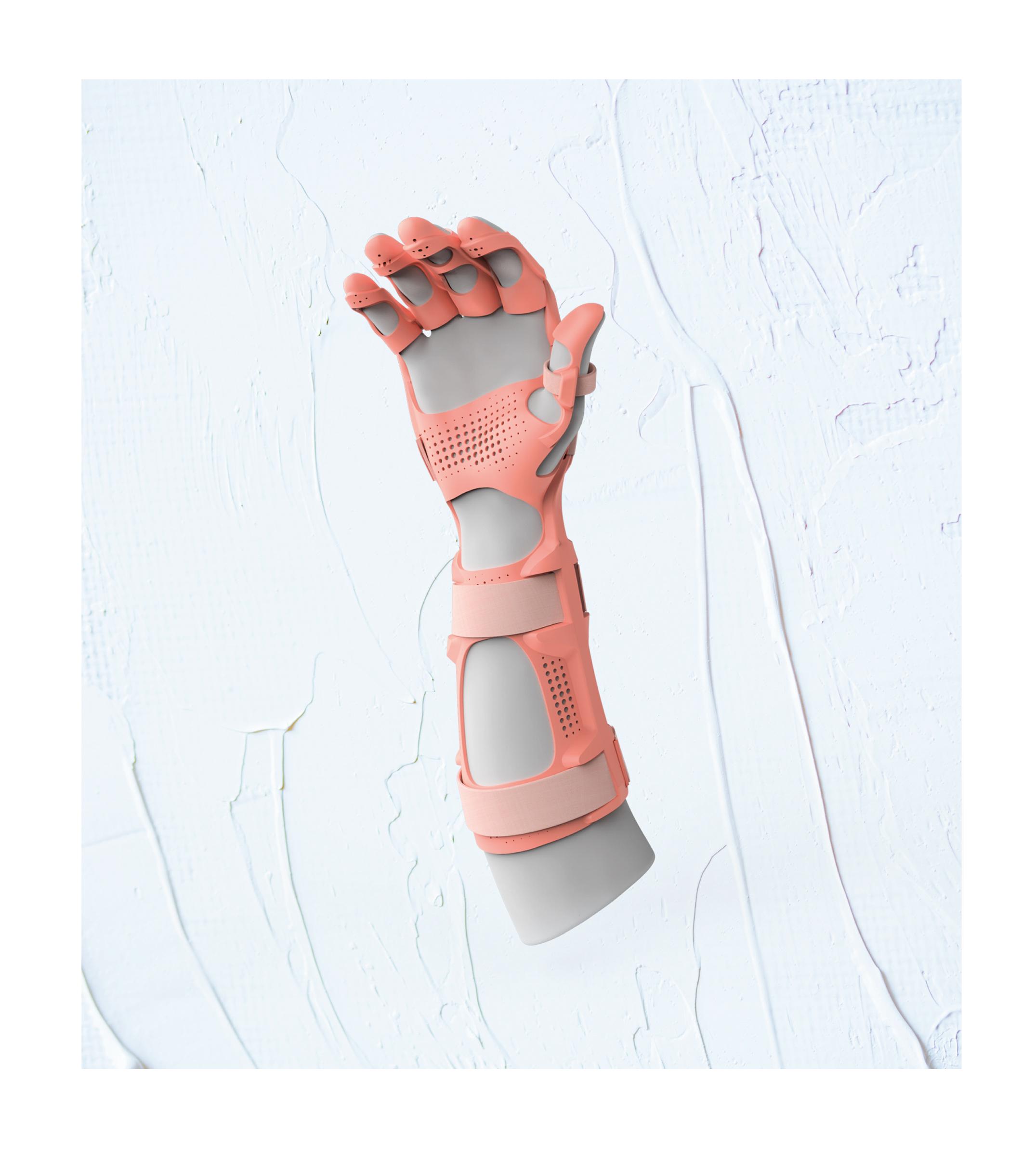 The 3D printed ManiFlex orthosis. Photo via Mano Balliu/James Dyson Award.