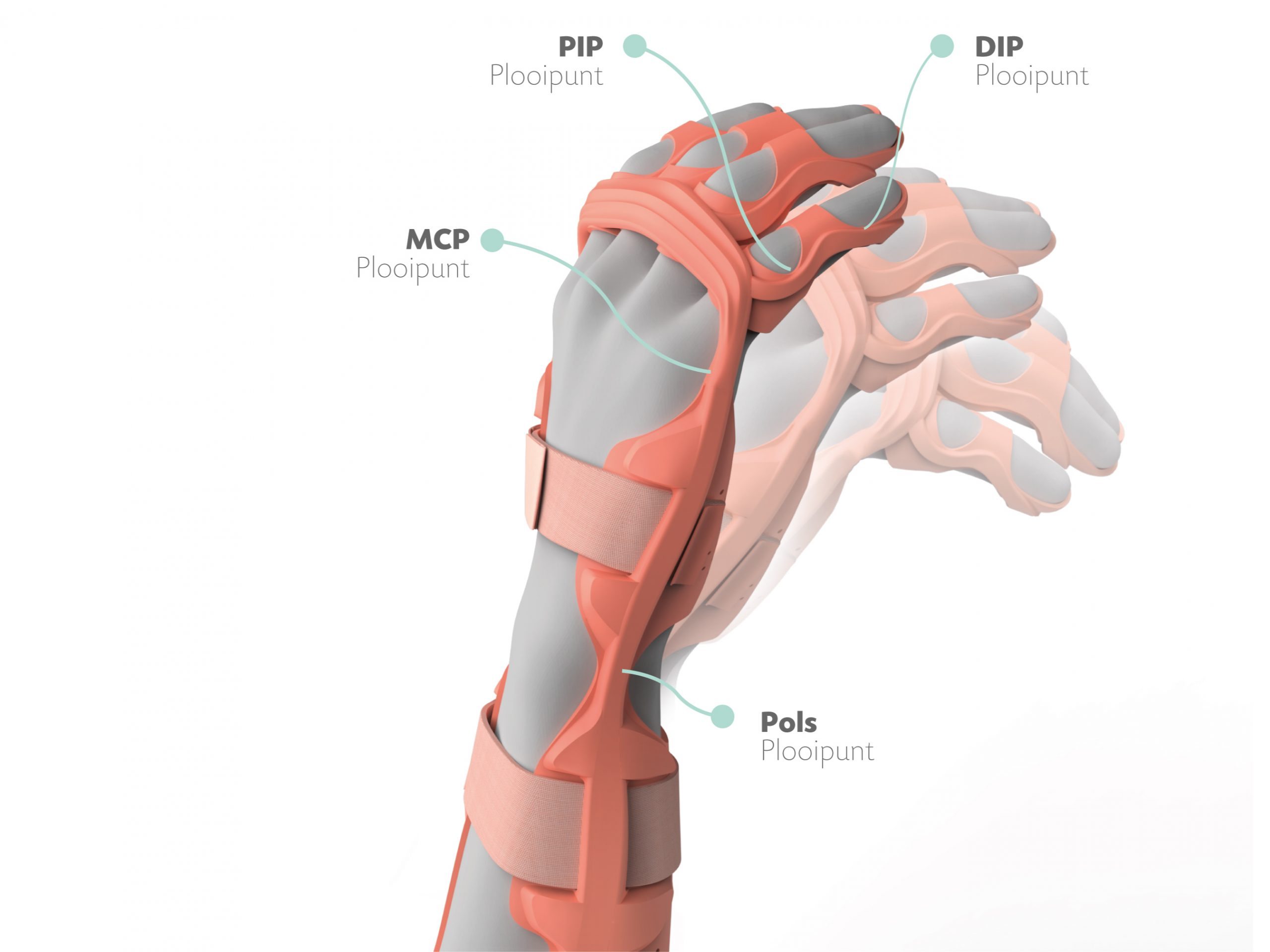 ManiFlex is a dynamic orthosis that allows for limited movement. Photo via Mano Balliu/James Dyson Award.